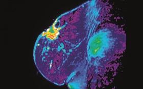 MRI Scan Breast Cancer
